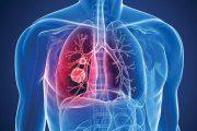 روغن زیتون و سرطان سینه