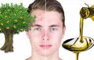 روغن زیتون و درمان جای جوش