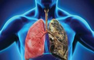فیبروز کیستی، بیماری ریوی کشنده
