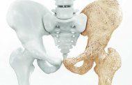 پوکی استخوان از چه سنی شروع می شود