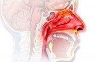 رینیت آلرژیک؛ عوامل، علائم، تشخیص و درمان
