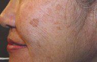 لکه های قهوه ایی رنگ پوست و درمان آن