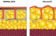 درمان و رفع سلولیت