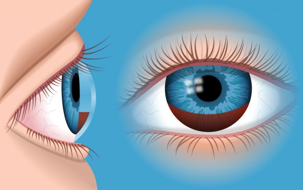 هایفما یا خونریزی داخلی چشم
