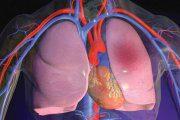 آمبولی ریه و عوامل ایجاد کننده آن