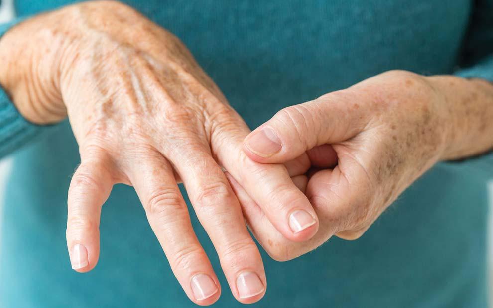درمان آرتریت روماتوئید (طب سنتی)