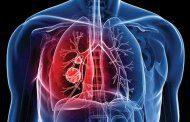 عفونت ریه و چند نمونه از بیماری های آن