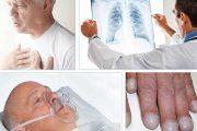 عوارض آمبولی ریه و راه های تشخیص آن