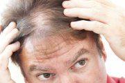 موهای نازک و کم پشت را چگونه پر حجم کنیم؟