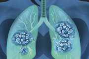 ندول ریه، سرطانی و غیر سرطانی دارد
