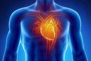 پنج علت سکته قلبی