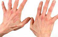 10 مشکل پوست و 10 راه حل آن
