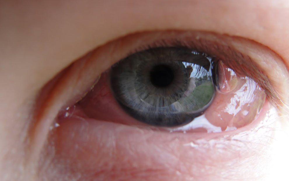 آلرژی های چشمی