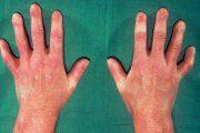 اسکلرودرمی؛ عوامل خطر، درمان و پیشگیری