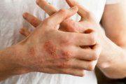 اگزما (حساسیت پوستی)