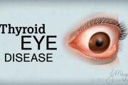 بیماری چشمی تیروئید