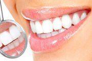 دستور العمل خانگی و سفیدی دندان