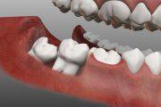 دندان عقل و عصب کشی آن