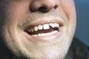 شکستگی دندان و پیشگیری از آن