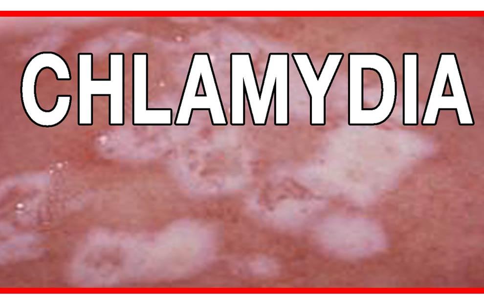 عفونت کلامیدیایی؛ علائم، عوارض و درمان