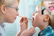 علت آفت دهان چیست؟