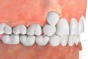 علل دندان های نامرتب