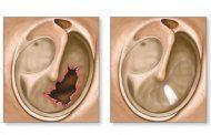 پارگی پرده گوش و ناشنوایی