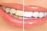 چرا از جرم گیری دندان می ترسیم؟