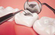 چرا پرکردگی دندان می افتد؟