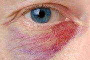 چشم و آلرژی های آن