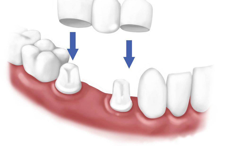 چه دندان هایی نیاز به روکش دارند؟