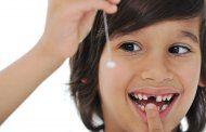 10 دلیل افتادن دندان ها