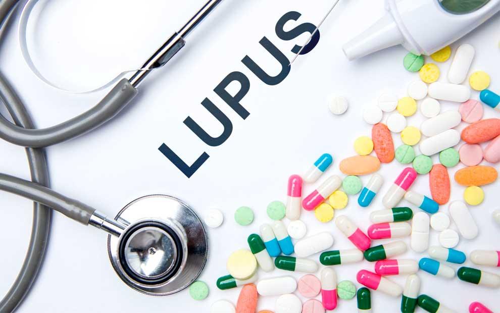 بیماری لوپوس سیستمیک